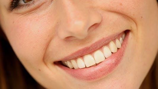 Thumbnail for Gorgeous Smile