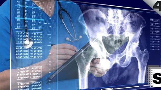 Thumbnail for Osteoporosis Examination