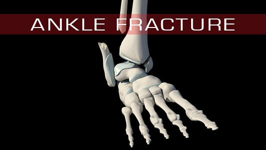 Thumbnail for Ankle Fracture