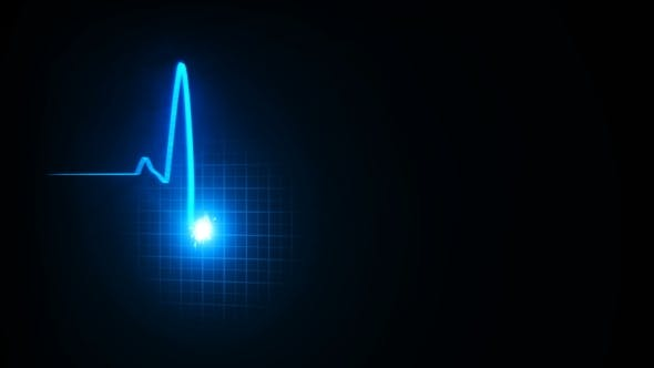 Thumbnail for Three-dimensional Pulse of Heartbeat, Two Lines