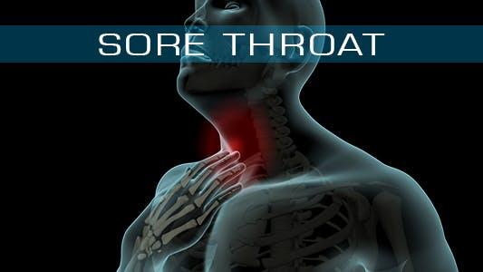 Thumbnail for Sore Throat