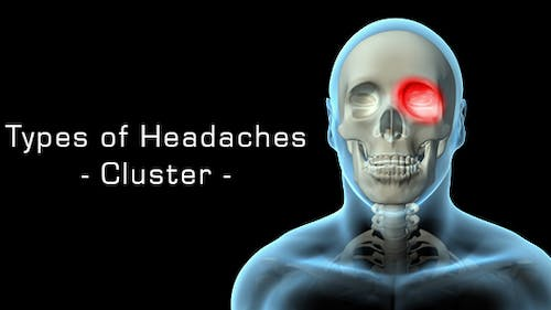 Types Of Headaches - Cluster