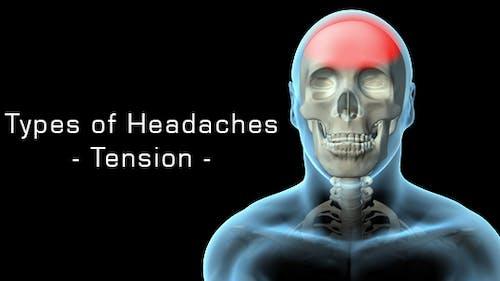 Arten von Kopfschmerzen - Spannung