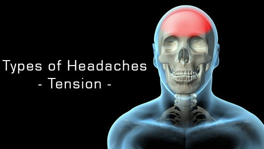 Thumbnail for Types Of Headaches - Tension