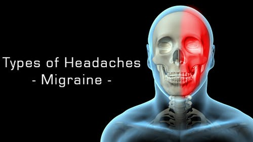 Types Of Headaches - Migraine