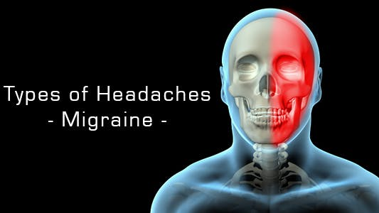 Thumbnail for Types Of Headaches - Migraine