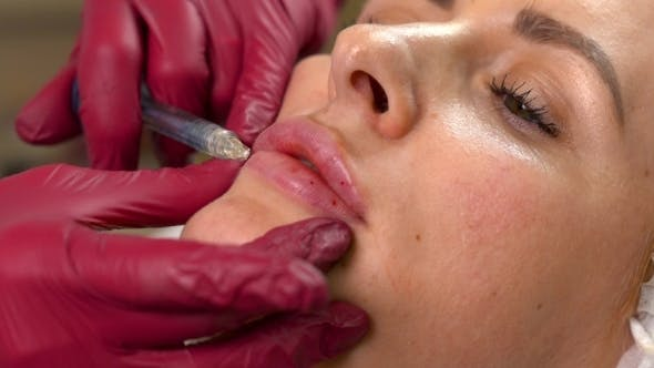 Thumbnail for Young Woman Lips Having a Hyaluronic Acid Injection. Lip Filler Shots