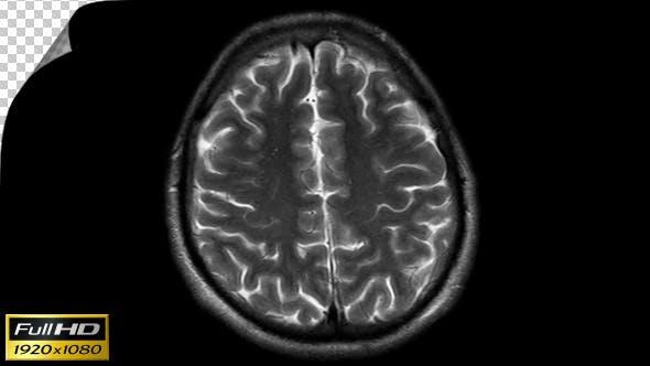 Thumbnail for Human Brain MRI Scan - Slow Version - Alpha Channel
