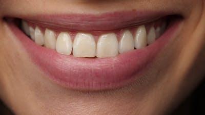 on Smile