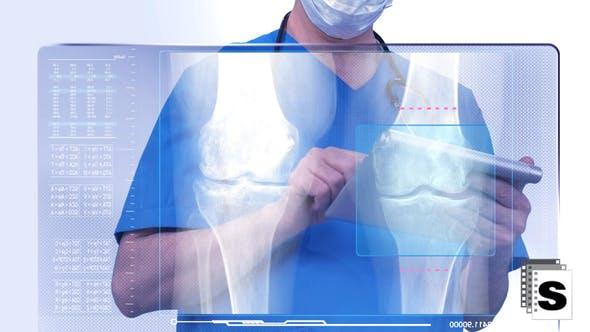 Thumbnail for Surgeon Looking Legs Xray