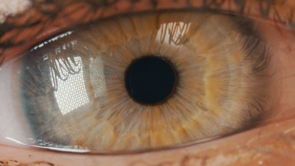 Thumbnail for Human Green Iris Contracting