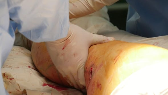 Cover Image for Leg with a Wound Is Operated By a Surgeon in White Gloves in a Hospital Room