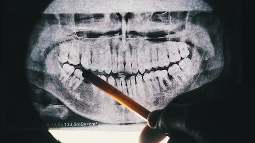 Dental X-Ray of Jaw with Teeth. Sealed Molars. Dentist Examines the Dental Arch