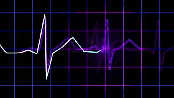 Thumbnail for Widescreen ECG