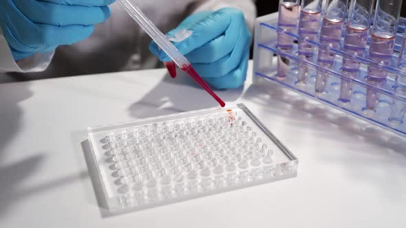 Immunological Blood Test. A Laboratory Assistant in a Modern Place Makes a Blood Test