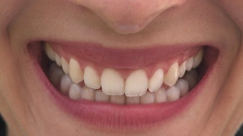 Female Mouth with Beautiful Lips and White Teeth Smiling