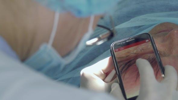Thumbnail for Dermatologist Make  Photo of Birthmark on Phone