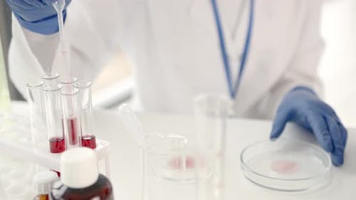 Laboratory Worker Studying Blood Samples to Detect Pathologies