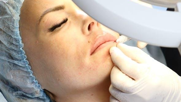 Thumbnail for Arzt oder Kosmetikerin macht einen Hautstech für eine Frau mittleren Alters mit Kanüle Nadel zum Heben