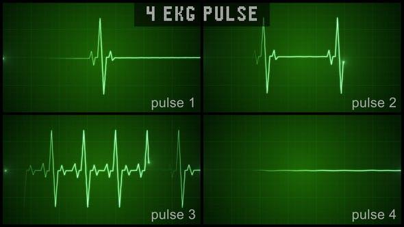 EKG Pulse Set
