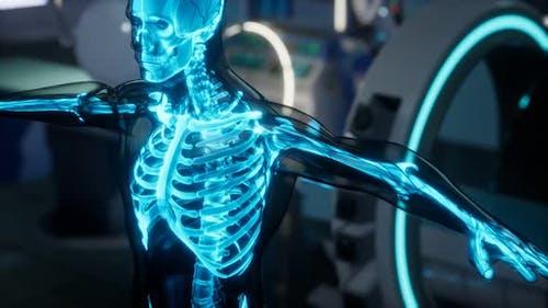 Human Skeleton Bones Scan Exam in Lab