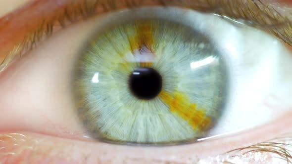 Thumbnail for Male Opening Eye To Reveal Pupil With Brown Birthmark In Iris