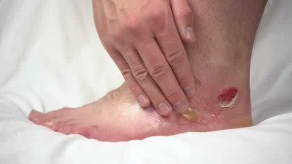 A Man Smears an Ointment on a Leg with a Second-degree Hot Water Burn. The Skin Was Swollen in Lumps