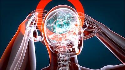 Massive headache motion design