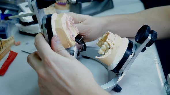 Dentist Working with Artificial Jaw Denture