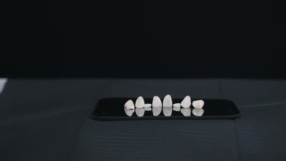 Thumbnail for Dental Veneers on Black Background