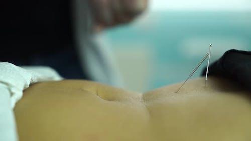 Abdominal Acupuncture Treatment