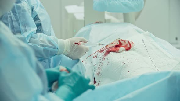 Thumbnail for Coronary Artery Bypass Graft Surgery
