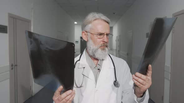 Cheerful Senior Male Doctor Smiling To the Camera While Comparing Two Xray Scans