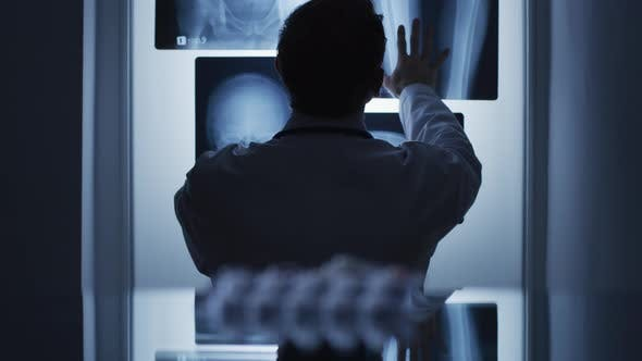 Thumbnail for Doctor looking at X-rays