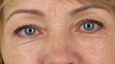 Woman Blue Eyes with Wrinkles Looking Straight Close Up