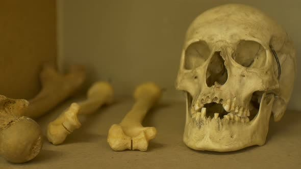 Thumbnail for Ancient Human Skull Exposed