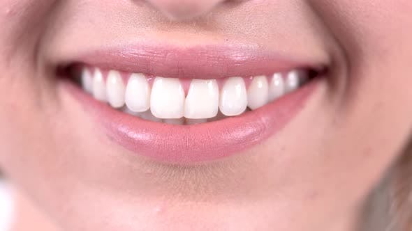 Cover Image for Smiling Woman Mouth With Perfect Teeth