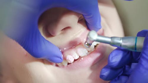 Professional Removing Teeth Plaque in Dental Office