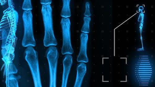 Menschliche MRT scannen Knochen