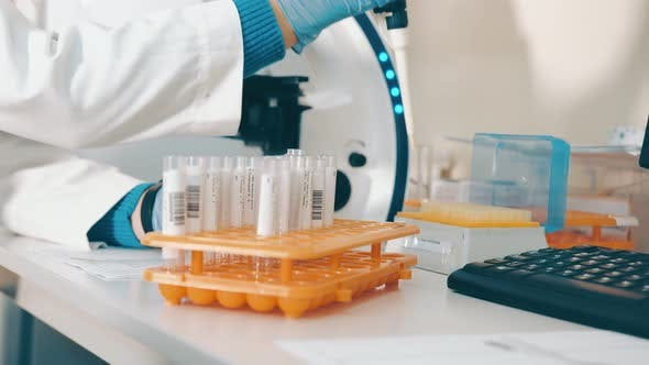 Researcher Working in a Laboratory with a Microscope Uses a Laboratory Pipette To Test Blood in Test