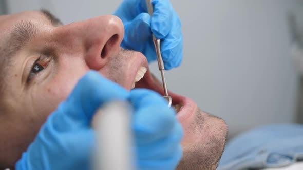 Thumbnail for Male Patient Receiving Dental Treatment