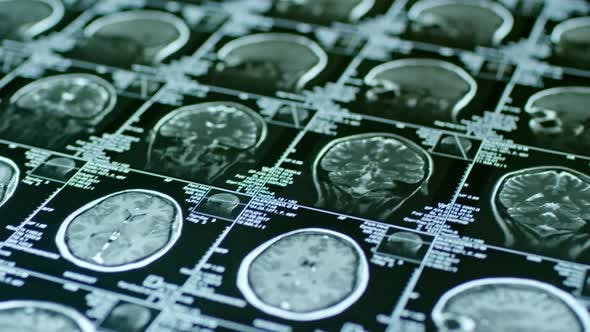 MRI Scan on Brain