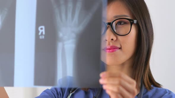 Thumbnail for Chinese woman doctor examining x-ray