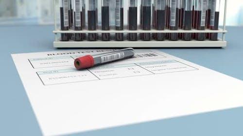 Der medizinische Bluttest ist negativ für die Virenerkennung