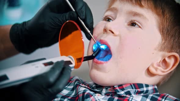 Thumbnail for A Little Boy Having His Tooth Done - Putting the Photopolymer Lamp in the Mouth and Turning It on