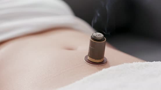 Thumbnail for Chinese traditional medicine moxibustion therapy