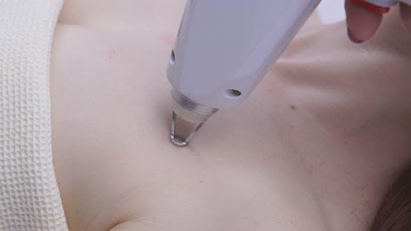Laser-Hautverjüngung Nahaufnahme in einer Kosmetologie-Klinik. Das Konzept der Hardware-Kosmetologie