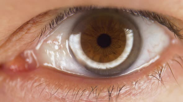Thumbnail for Macro Shot of Male Brown Eye Opening