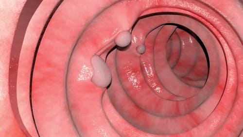 Overview Of The Intestinal Polyps