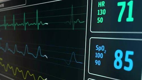 ECG Cardio heart beat monitor in hospital loop and seamless